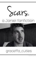 Scars. by graceffa_cuties