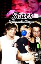 Scars (Larry Stylinson) by tommohasblueyes