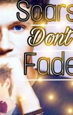 Scars Don't fade (Niall horan fanfic) by ash_musicd601