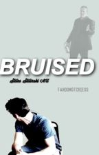 bruised//«stiles stilinski» by fandomstcries