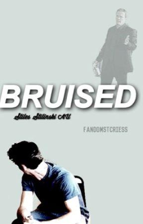 bruised//«stiles stilinski» by fandomstcries