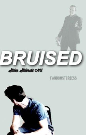 bruised//«stiles stilinski»