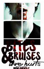 Bites & Bruises (ManxMan) by howlingwolf