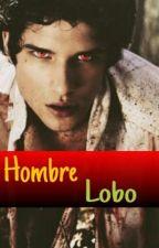 Hombre Lobo (Scott McCall y Tu) by sharonhuertas3