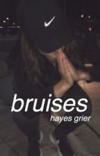 bruises | h.g by 1-800-MAGCON