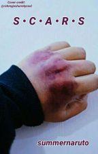 Scars by Summernaruto