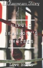Harold Beaumont's Bruises by gumwum