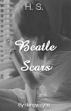 Beatle Scars |H.S| by dangypayne