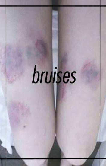 Bruises 》rdg