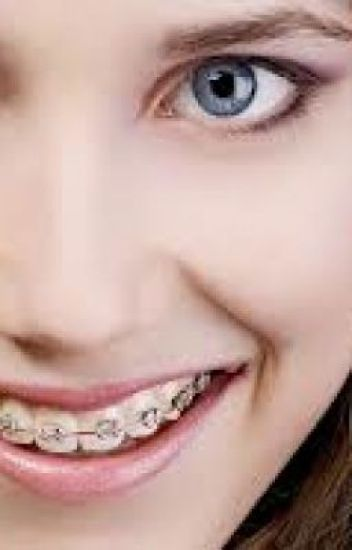 The Girl With The Braces Harry Stylels Fanfic