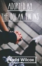 Adopted by the Dolan Twins by KelisWilcox