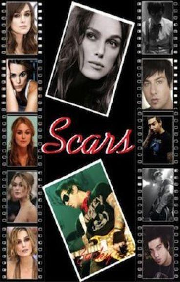 [Scars]