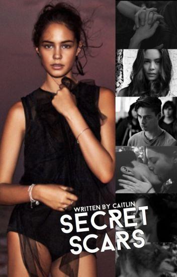 Secret Scars ▷ Embry Call [1]