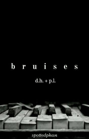 bruises - d.h. + p.l.