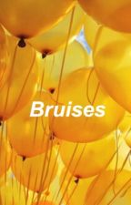 Bruises e.d by bellamarie28