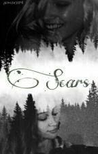 Scars [GrilxGirl]  by Wuskripa