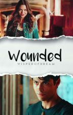 Wounded ▹ Shadowhunters by MagicalCompany