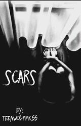 Scars  by Teenwolfmk55