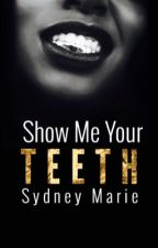 Show Me Your Teeth//Short Story by Sydney724