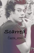 Scarred. (A Harry Styles FanFiction) by Cazza_xoxo