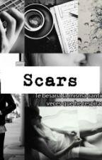 Scars -James Bay- by MortRainey