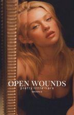 Open Wounds | Pretty Little Liars | 1 by -usernameallison
