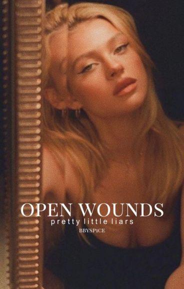 Open Wounds   Pretty Little Liars   1