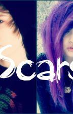 Scars (Jeydon Wale)FanFiction by TateisGay40