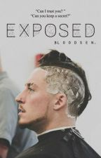 EXPOSED ▷ ENZO AMORE by bloodsen