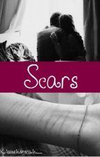 Scars (Luke Hemmings) by Kissesintherain_