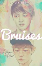 Bruises. by JHS_LCFR