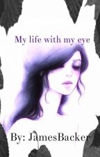 My life with my eye by JamesBacker001