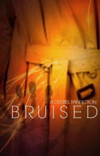 Bruised: A Destiel AU