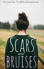 Scars and Bruises by TheBiitchDowntown