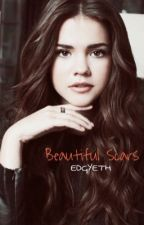 Beautiful Scars(REWRITING) by EDGYETH