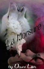 La Morsure by Douce-Lilith