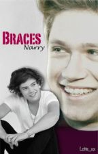 Braces (Narry) *I went Sherlock on this one, so wait, please, I'm busy!* by Lotte_xx