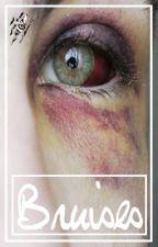 Bruises [Larry Stylinson AU] by gunsformikey