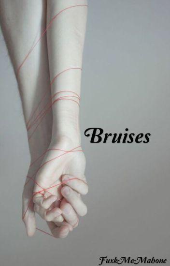 Bruises ↛a.h.m