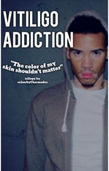 Vitiligo Addiction || Book 3