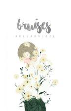 bruises by bellasoleil