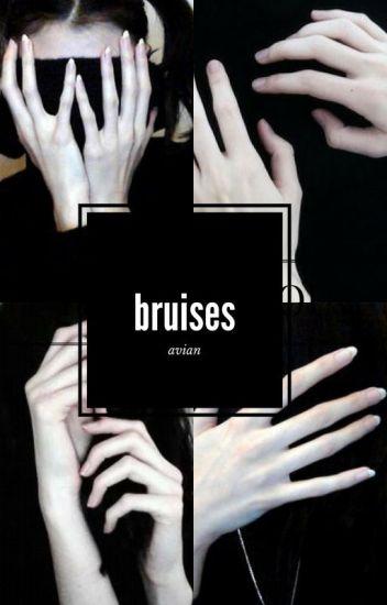 bruises || ziam