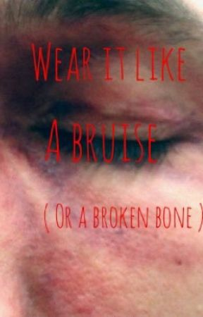 Wear It Like A Bruise (or a broken bone)  by falloutdatboi