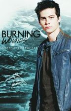 Burning Wounds ▶ Stalia AU by borntoreadnwrite