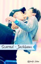 Scarred ~ Jackbam by jbmtjr_luhan