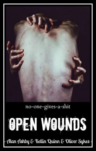Open Wounds // Alan Ashby, Kellin Quinn, Oliver Sykes ✓