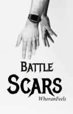 Battle Scars [nouis/ziall/lilo/narry] by WhoranFeels