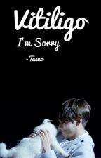 Vitiligo|| البُهاق by -Taeno
