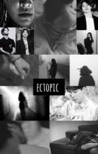 ectopic [pjm] by ribts_