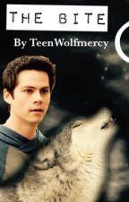 Teen wolf- Stiles the Bite. by TeenWolfmercy